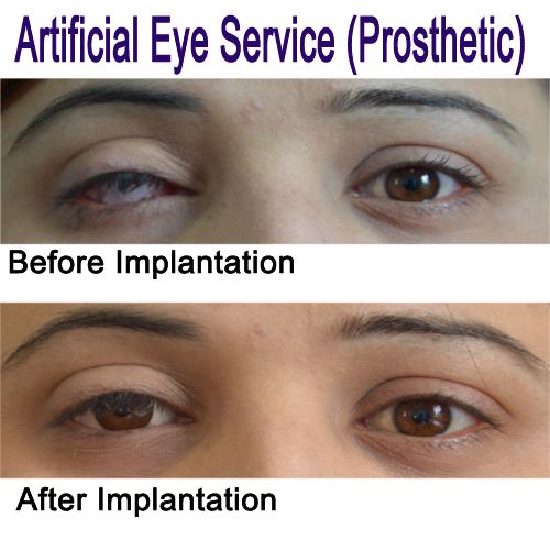Artificial Eye Service in Nepal